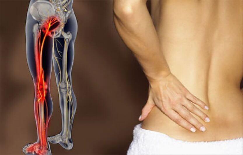 Тазобедренный сустав и боль в ногах 5