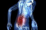 Остеохондроз поясницы: симптомы и эффективные методы лечения