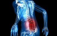 Сильный приступ при остеохондрозе