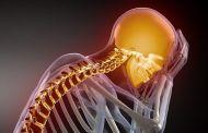 Цервикокраниалгия на фоне шейного остеохондроза — лечение