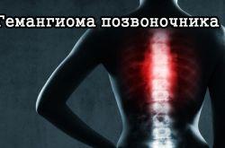 Гемангиома позвоночника: причины появления, эффективные методы лечения