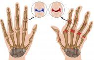 Реактивный артрит (синдром Рейтера)