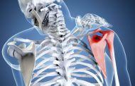 Как лечить плечевой остеохондроз и его симптомы