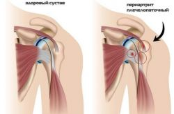 Плечелопаточный периартрит: причины заболевания, правила лечения