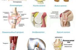 Болезни коленного сустава: классификация, принципы лечения, осложнения