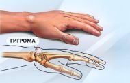 Гигрома: причины появления, симптоматика и эффективные методы лечения