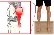 Тендинит: симптомы заболевания, причины появления, правила лечения