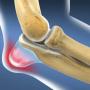 Бурсит коленного сустава: симптомы болезни, правила лечения