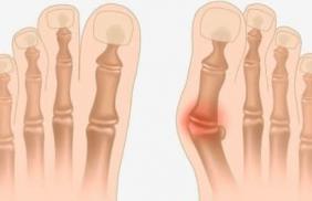 Причины и лечение Вальгусной деформации стопы