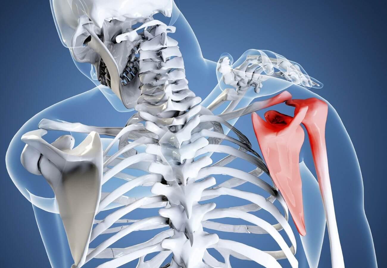 Остеохондроз плечевого сустава симптомы и лечение причины и профилактика