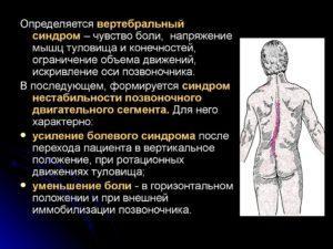 Вертебральный синдром