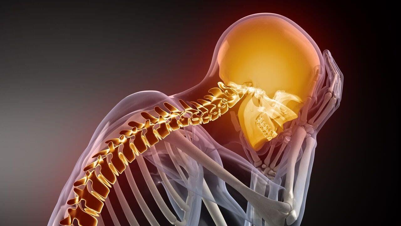 Цервикокраниалгия на фоне шейного остеохондроза