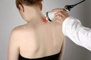 Лечение шейного остеохондроза лазером