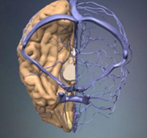 Вены в мозгу