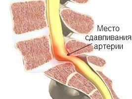 Сдавливание артерии