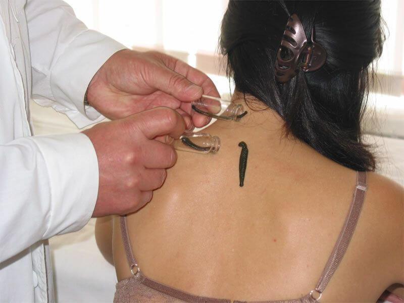Лечение пиявками остеохондроза шейного отдела отзывы