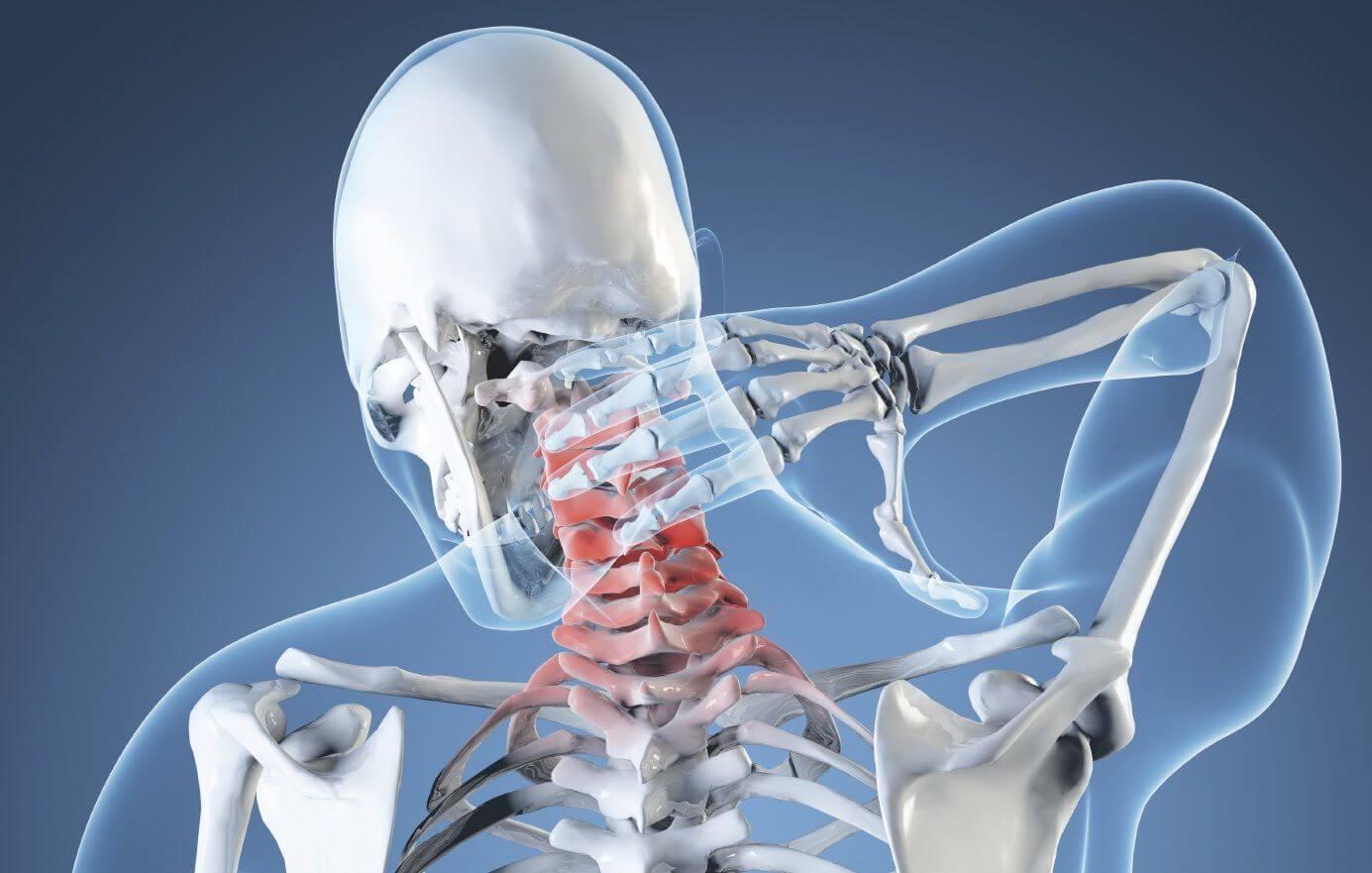 Лечение вертебро базилярной недостаточности при остеохондрозе