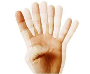 Двоение в глазах при шейном остеохондрозе - диплопия и лечение