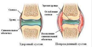 Поврежденный сустав