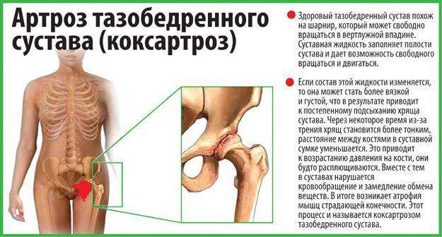 Хондропротекторы для тазобедренного сустава суставы болят лечение локти
