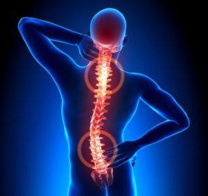 Субхондральный склероз замыкательных пластинок что это такое