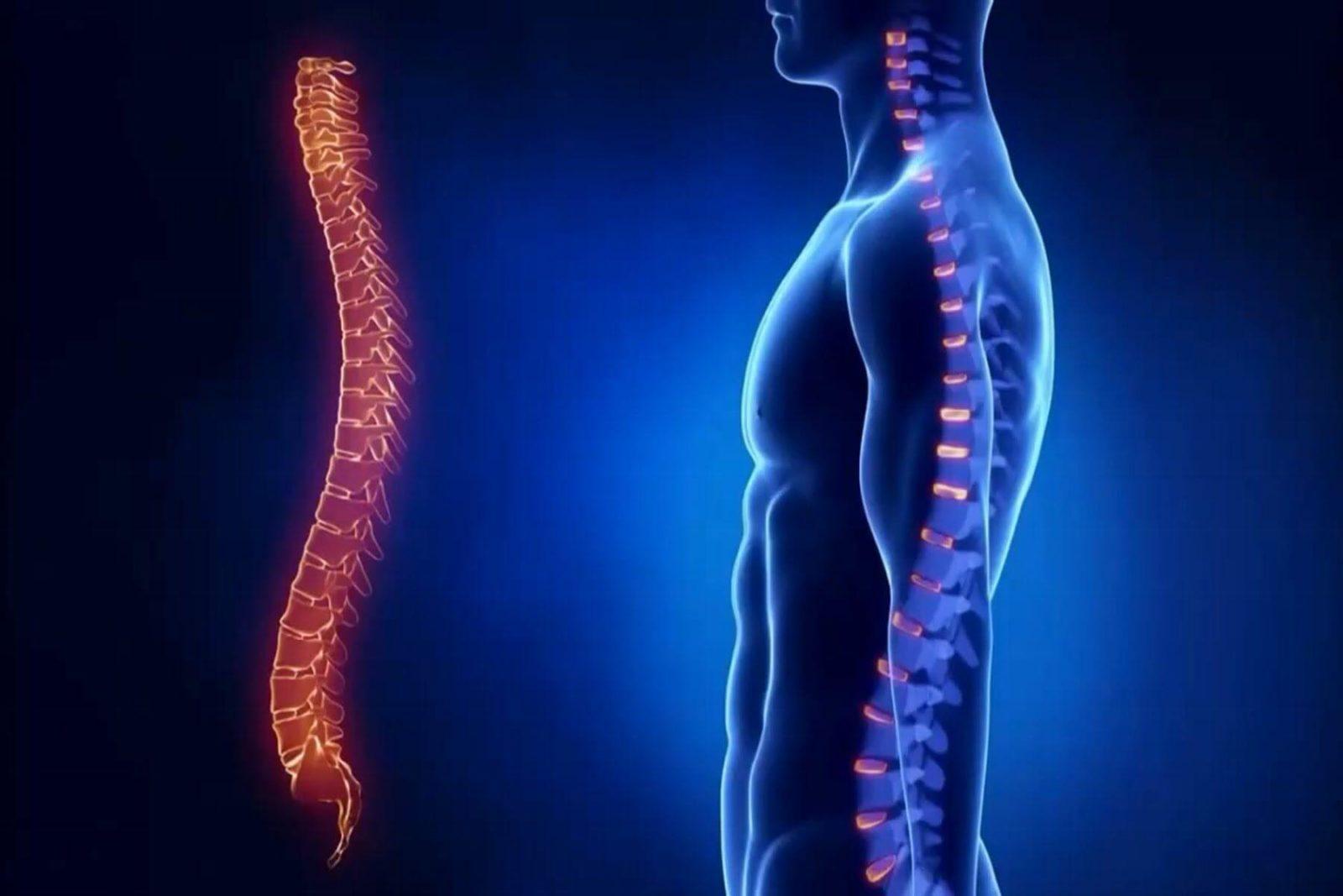 Субхондральный склероз пластинок тел позвонков
