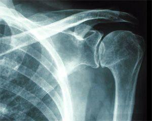 Рентгенография плеча