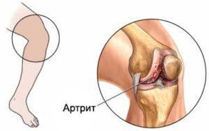 Болезнь поражающая суставы анкилоз височно-нижнечелюстного сустава детей