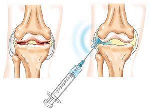 прибор алмаг для лечения позвоночника и суставов