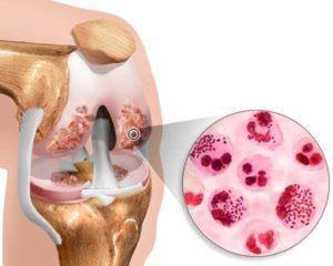 Инфекционный (гнойный) артрит
