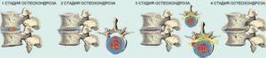 Степени развития остохондроза шейного отдела
