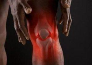 АРТРИТ: суставы, МКБ, диагностика, симптомы и лечение