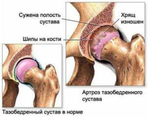 Больной сустав