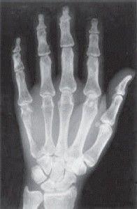 Остеохондроз руки