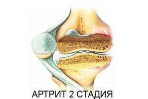 Артрит 2 стадия