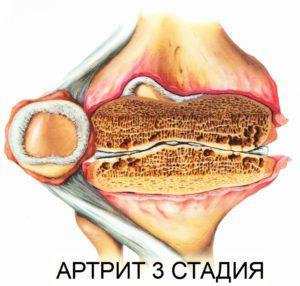 Артрит 3 стадия