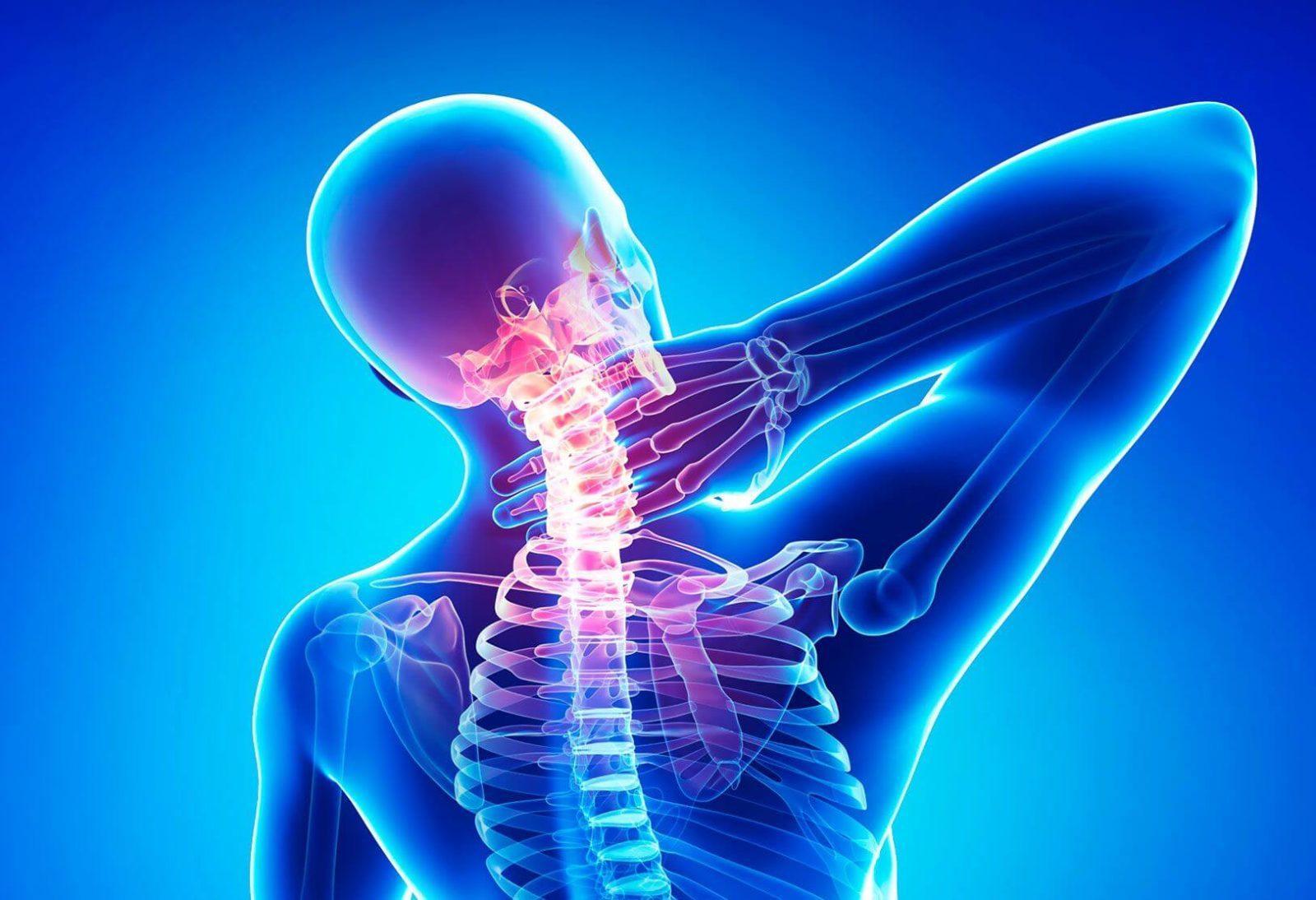 Остеохондроз шейного отдела 1 степени что это такое Лечение шейного отдела
