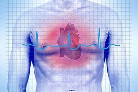 Остановка сердца с