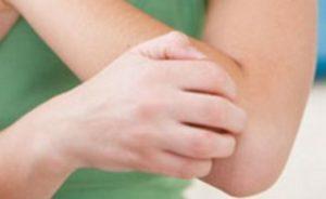 Нимесулид при невралгии межреберной невралгии