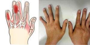 Заболевание в пальцах рук