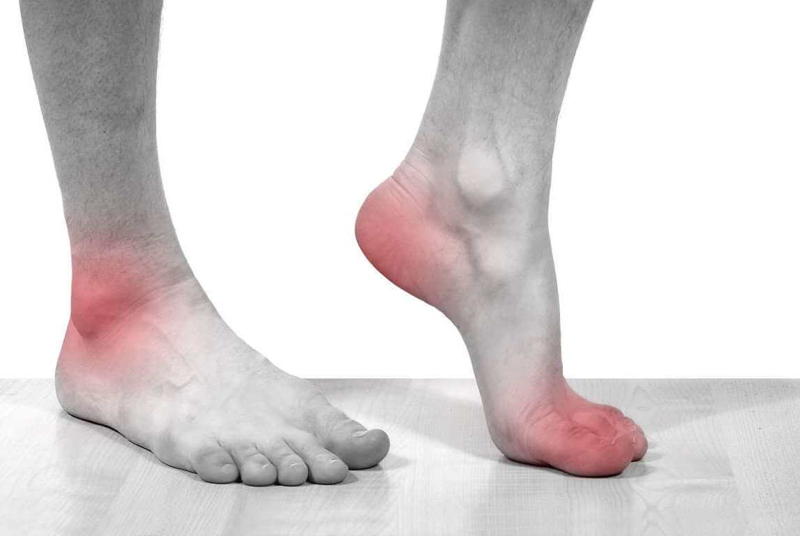 Подагра признаки и лечение у мужчин