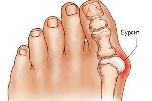 Бурсит в ноге