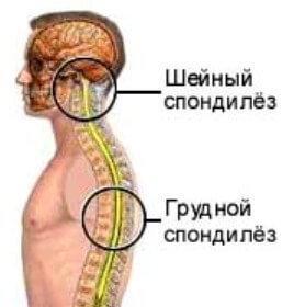 Симптомы шейного спондилеза
