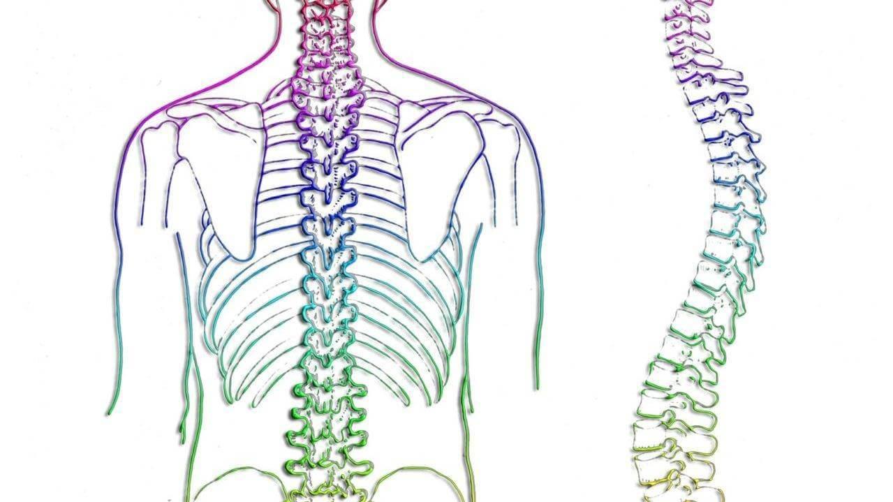 Сколиоз позвоночника - что это такое, симптомы у взрослых, стадии, спины