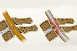 Этап асфиксии стеноза