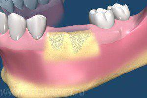 Стоматологический остеомиелит