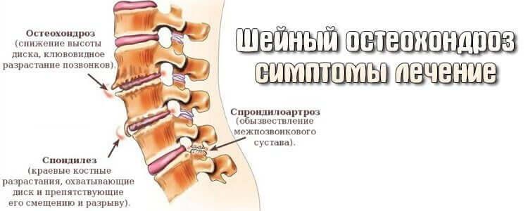 Что такое шейный остеохондроз и как его лечить