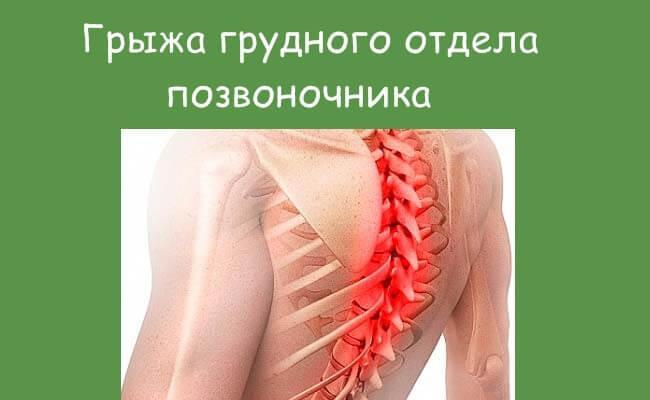 Грыжа грудного сегмента позвоночника