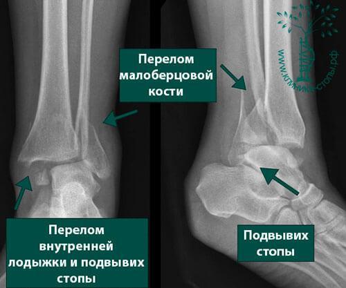 Перелом костей лодыжки