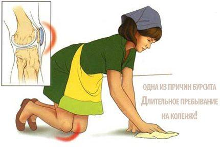 Причина появления бурсита коленного сустава
